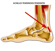 achilles injuries - dunsborough physio help