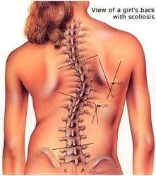 scoliosis - dunsborough physiotherapy centre