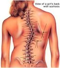 Dunsborough Physio scoliosis screening