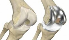 total knee replacement - dunsborough physio treatment