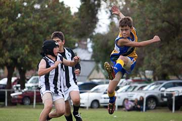 footy injuries in Dunsborough - physio info