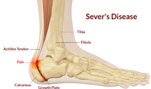 sever's disease - dunsborough physiotherapy info