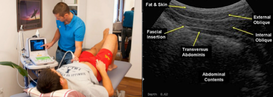 Real-time ultrasound at Dunsborough Physiotherapy Centre