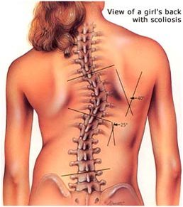 Scoliosis Screening - Dunsborough Physio